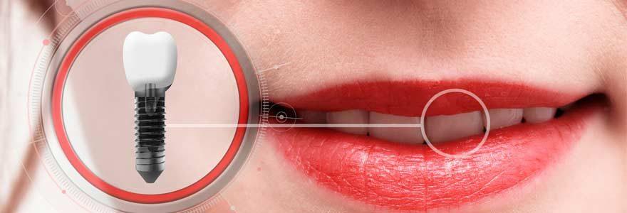 L'implant dentaire en Hongrie, la bonne idée