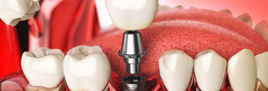 Quels sont les avantages de la chirurgie implantaire guidée ?