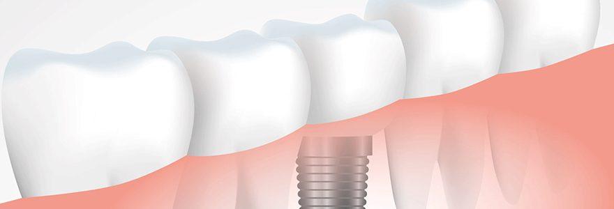 Urgences dentaires : tout savoir sur la greffe osseuse dentaire