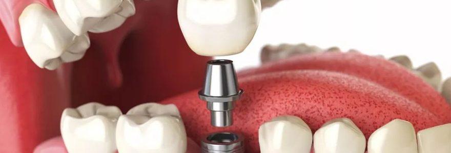 Pose d'implant dentaire : détails en ligne