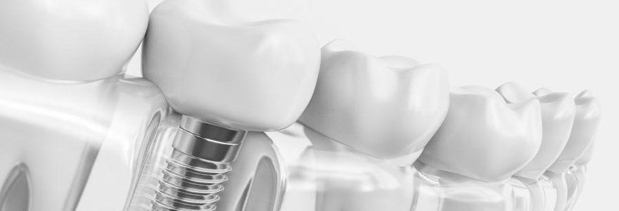 Quelle est la durée de vie maximum d'une couronne dentaire ?